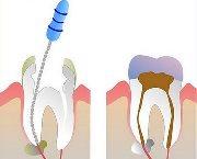 Болит зуб после чистки каналов