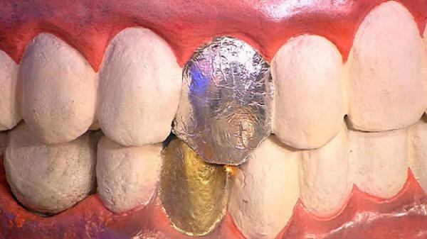 Синдром гальванизма в стоматологии