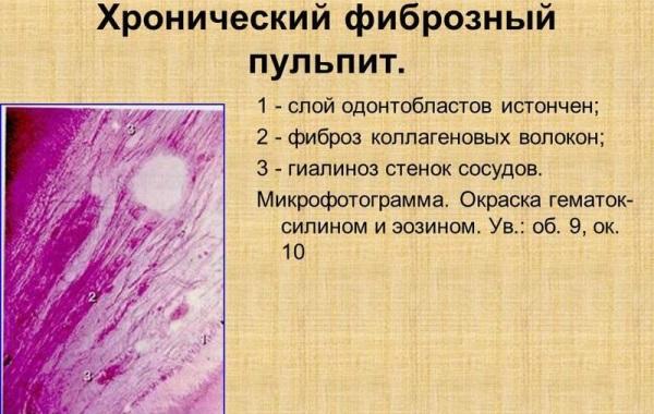 Хронический фиброзный пульпит жалобы и дифференциальная диагностика