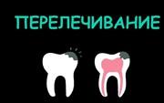 Перелечивание каналов зуба