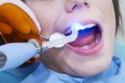 Световая пломба на передние зубы фото
