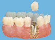 Вкладка в зуб под коронку