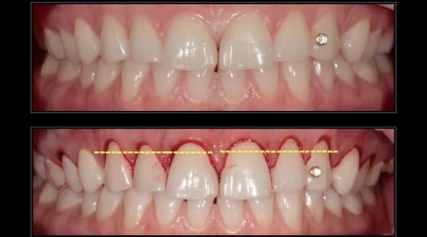 Виды зубосохраняющих операций