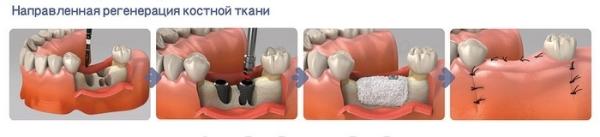 Сколько стоит направленная костная регенерация