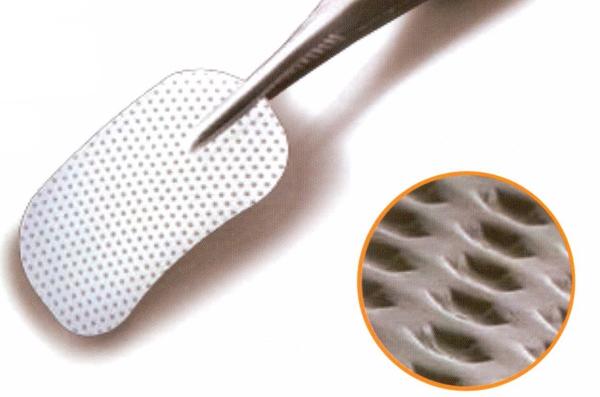 Направленная костная регенерация со взятием аутокости в стоматологии