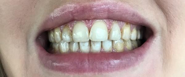 Патология зубов фото