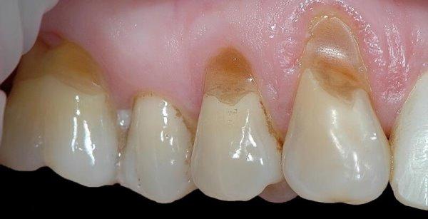Патология зубов мудрости