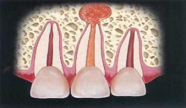 Патология зубов у человека