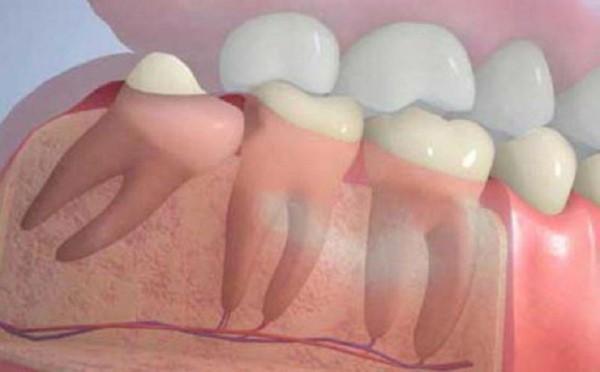 Патология зубов у детей