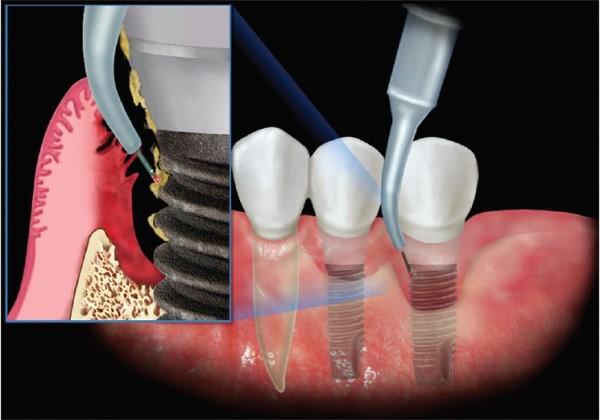 Причины и признаки отторжения зубных имплантов