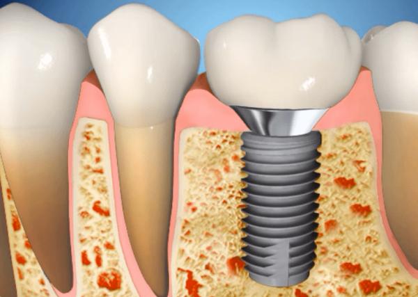 Что влияет на приживление зубных имплантов