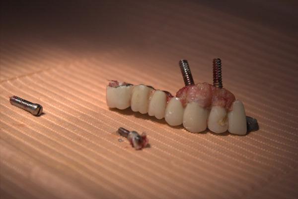 Профилактика отторжения зубного импланта