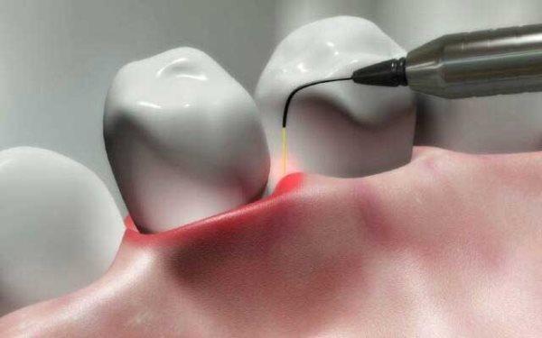 Антимикробная фотодинамическая терапия в стоматологии