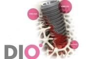 Системы имплантов Dio