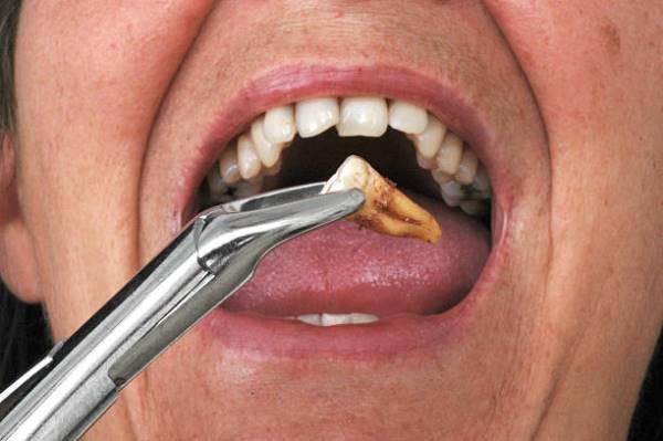 Нужно ли удалять зубы мудрости при установке брекетов