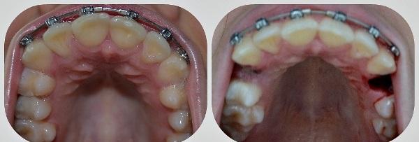 Надо ли удалять зубы мудрости при брекетах
