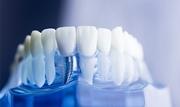 Бады для приживления зубных имплантов