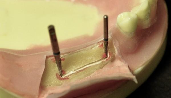 Используемые имплантаты