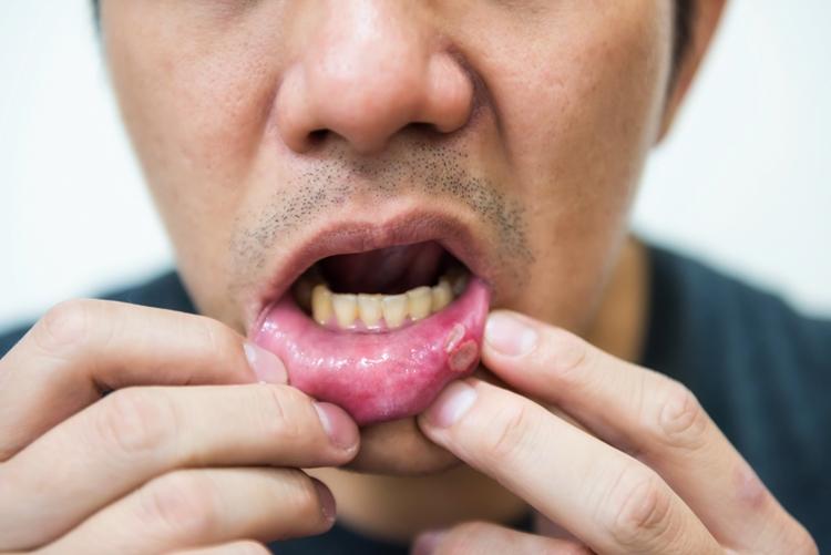 способы лечения стоматита