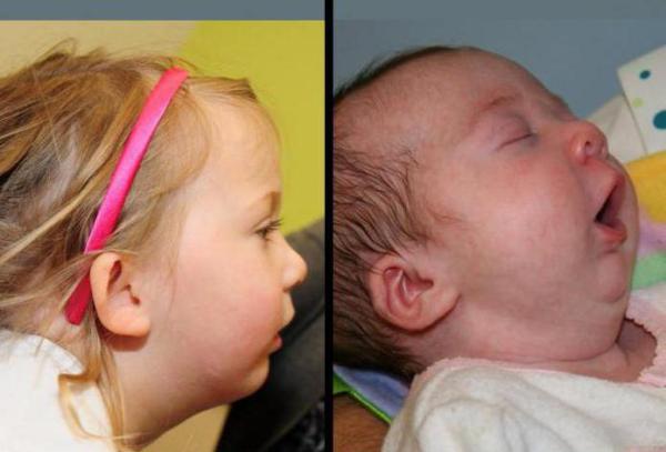 Недоразвитая нижняя челюсть