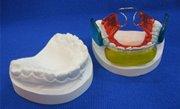 Бионатор ортодонтия