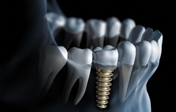 Как определяется стабильность имплантатов