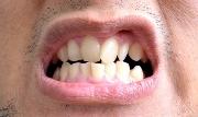 Как можно выровнять зубы в домашних условиях