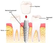 Одномоментная имплантация зубов противопоказания