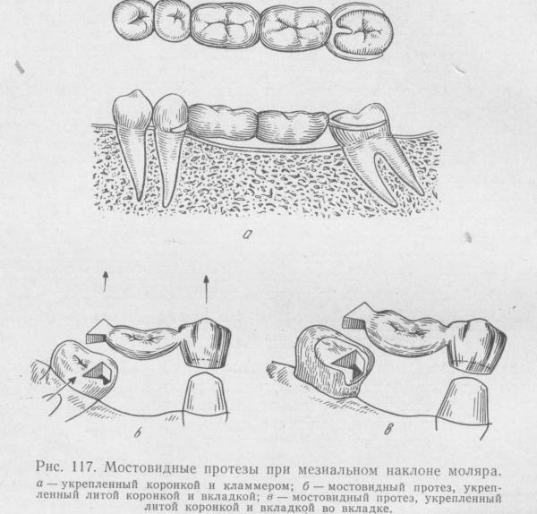 Составные элементы бюгельного протеза и их назначение