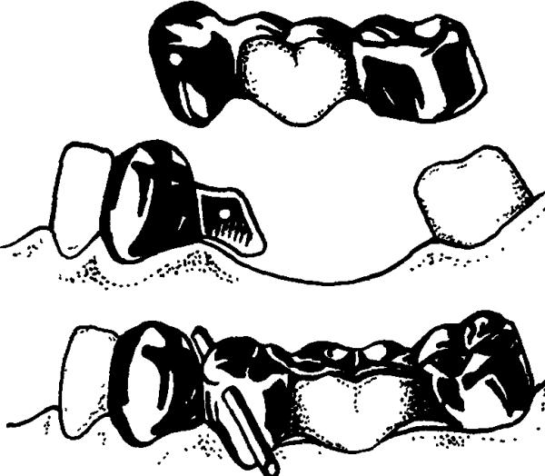 Составные части протеза