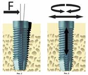 Стабильность имплантатов определение