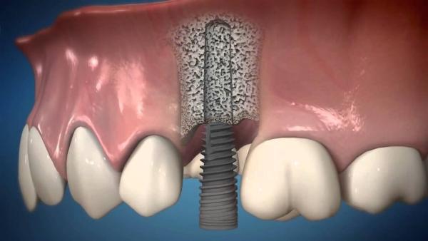 зубные виниры что это