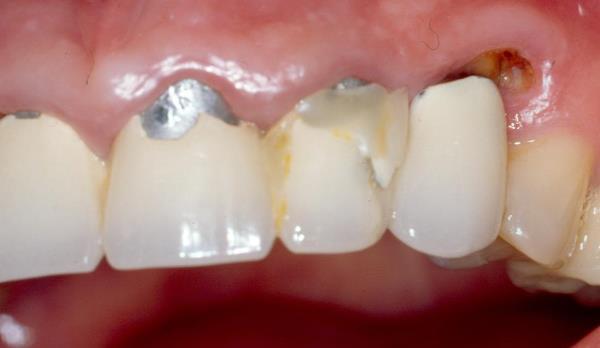 Аллергия на пластмассовые зубные коронки