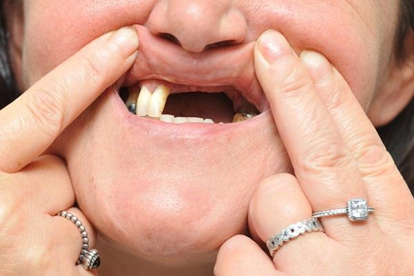 Так как зубы напрямую связаны с близкими к спящему людьми, то сон, в котором зубы крошатся, сонник толкует как предзнаменование того, что проблемы могут возникнуть у очень близкого человека.