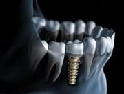 Определение стабильности имплантатов