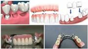 Виды и стоимость протезирования при отсутствии большого количества зубов