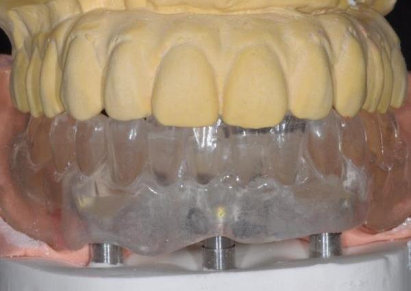Системы, применяемые при проведении имплантации по методу All on 3 trefoil