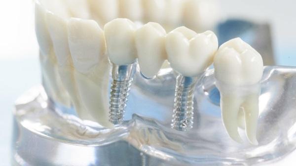 Сложности имплантации жевательных зубов
