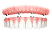 Имплантация зубов на 4 имплантах