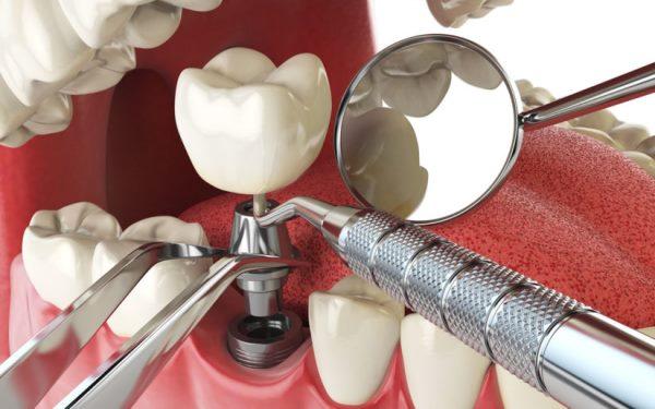 Больно ли делать имплантацию зубов