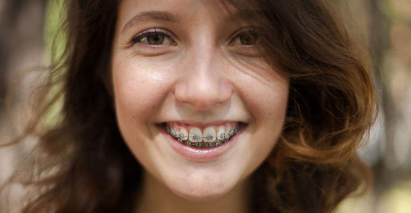 Показания к установке брекетов на 2 челюсти
