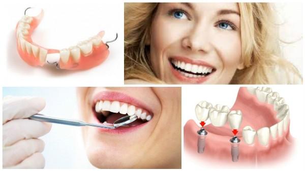 Чем отличается протезирование от имплантации зубов по мнению специалистов