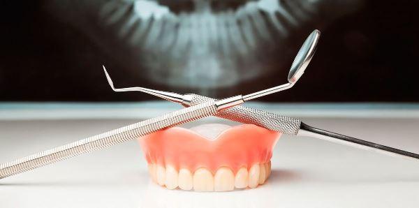Что лучше имплантация или протезирование зубов
