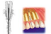 Эндодонтически стабилизированные имплантаты показания