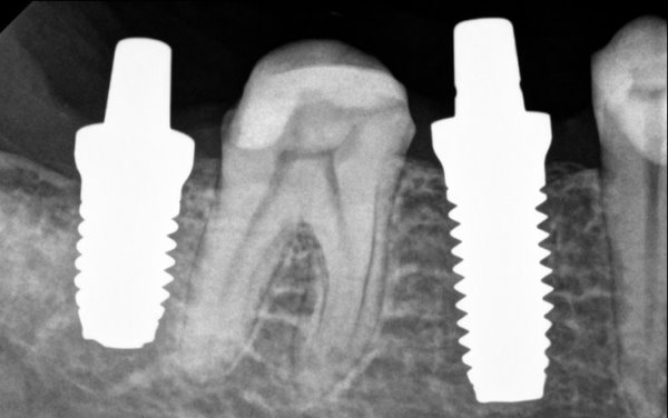 Имплант зуба диоксид циркония цена