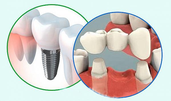 Отличие имплантации от протезирования зубов