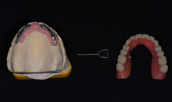 Полный съемный зубной протез на верхнюю челюсть