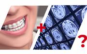 Можно ли МРТ с брекетами