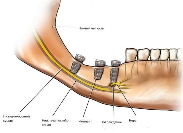 Повреждение нижнечелюстного нерва при имплантации