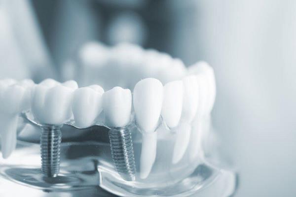 Протезирование зубов и имплантация в чем разница